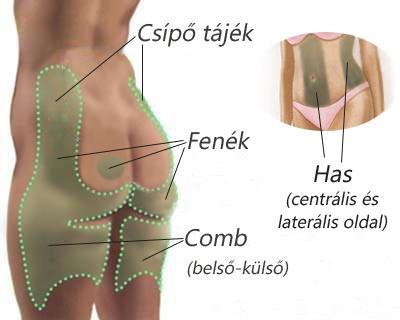 mágnes az ízületi fájdalmakhoz a térd deformáló artrózisának diagnosztizálása